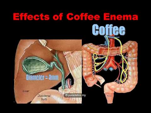 What is Coffee Enema