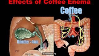 What is Coffee Enema
