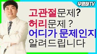 사타구니 통증, 고관절 통증, 허리 문제일까요? 관절문…