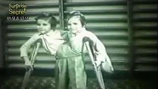 샴 쌍둥이 자매 마샤&다샤! 그녀들의 비극적인 스토리