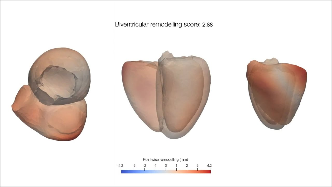 Ventricular Shape Patterns in Young Adults Born Small for Gestational Age vs Control Patients