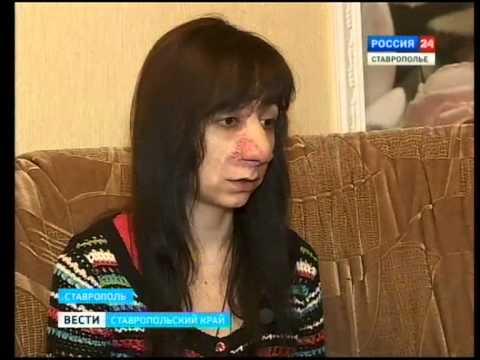 Историю жительницы Ставрополя увидела вся страна