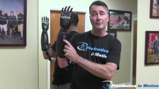 Below The Elbow Amputee Demonstrates BeBionic 3 Myoelectric Prosthesis