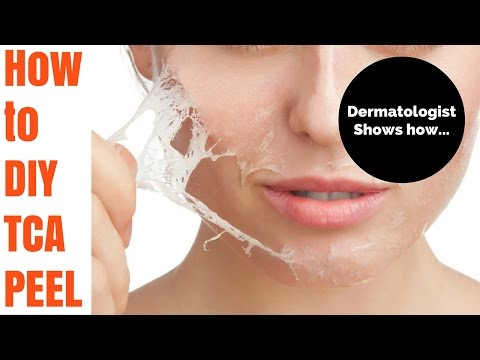 How to TCA peel- Tutorial by Dermatologist
