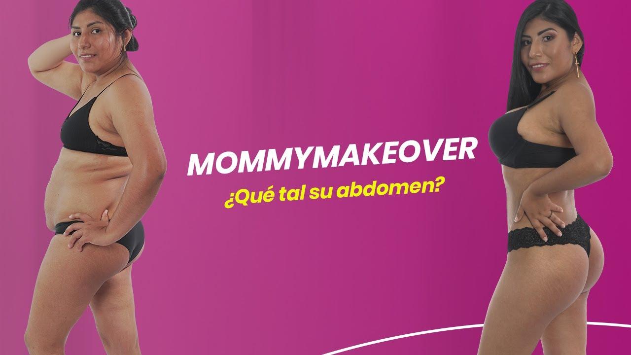 MOMMYMAKEOVER ¿QUÉ TAL SU ABDOMEN?