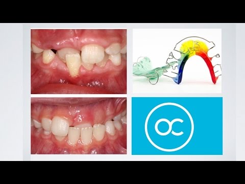 Interceptive Orthodontics At The Orthodontic Centre, Palmerston North