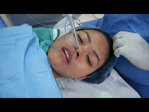 Putting A Girl Into Sleep - General Anesthesia - Intubation