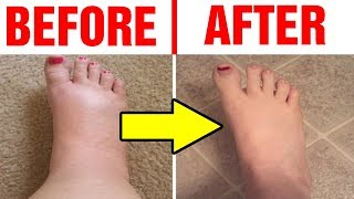 Best Home Remedies For Swollen Feet|How To Reduce Swollen Feet