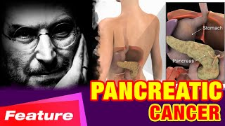 PANCREATIC CANCER - What are the symptoms of pancreatic cancer