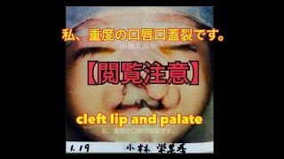 ブログ「私、重度の口唇口蓋裂です。」で メディアが注目のブロガー•小...