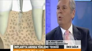 Yapay Çene Kemiği Tedavisi nedir, implant nasıl yapılır , İmplant diş nedir  - Tanfer Klinik