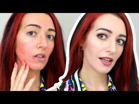 How To Cover Redness & ANNOYING PIMPLES With Makeup | Acne Scarring Coverage