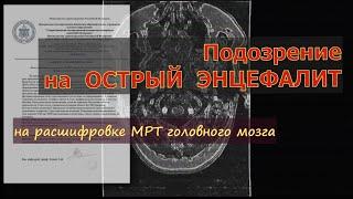 ДЕМИЕЛИНИЗИРУЮЩИЙ процесс с подозрением на ОСТРЫЙ ЭНЦЕФАЛИТ на РАСШИФРОВКЕ МРТ головного мозга