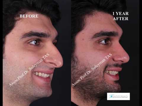 Male Rhinoplasty in Turkey