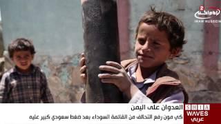الامم المتحدة تطالب السعودية بيانا بإجراءات التحالف لمنع قتل   الأطفال في اليمن 16/7/2016