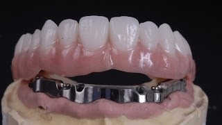 All on 4 implant bar supported denture thumbnail