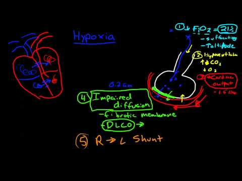 Hypoxia Shunts And Ventilation Perfusion Mismatch