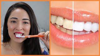 Com Apenas uma Aplicação – Elimina todos Tártaro dos Dentes e Clareia de Forma Natural