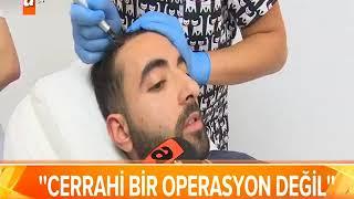 SAÇ SİMÜLASYONU ATV ANA HABER Video
