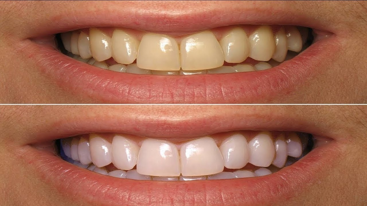 How To Whiten Teeth At Home Without Baking Soda Youtube