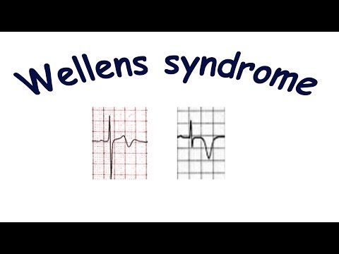 Wellens syndrome