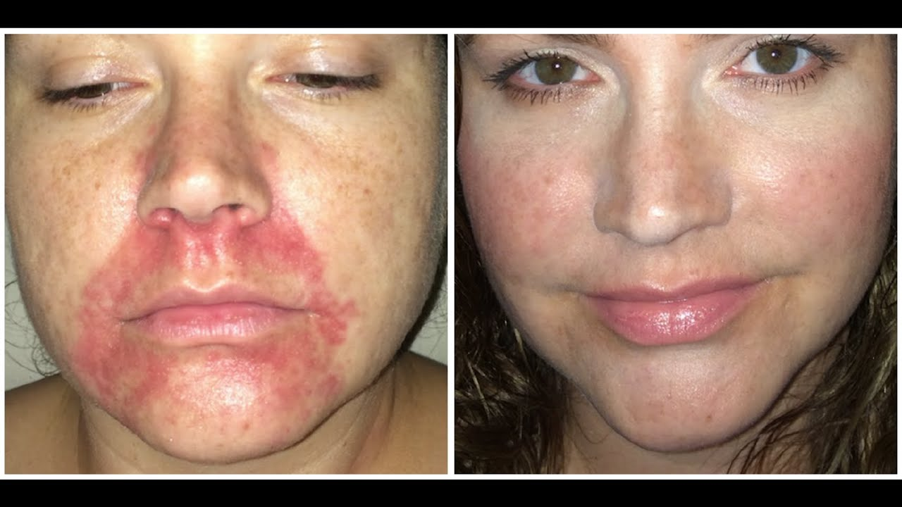 facial Pictures dermatitis of