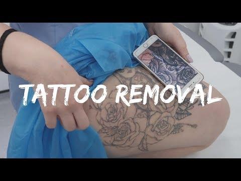 Tattoo Removal - Sk:n Harley Street | Social Beautify