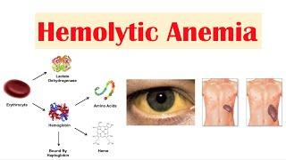 Anemia Hemolitik.