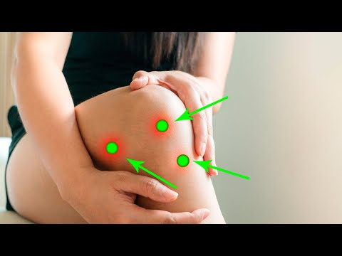 Press These Points to Reduce Knee Pain Naturally