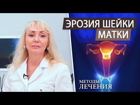 Эрозия шейки матки. Методы лечения