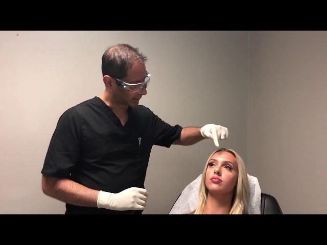 Nonsurgical Nose Job (Injection Rhinoplasty)
