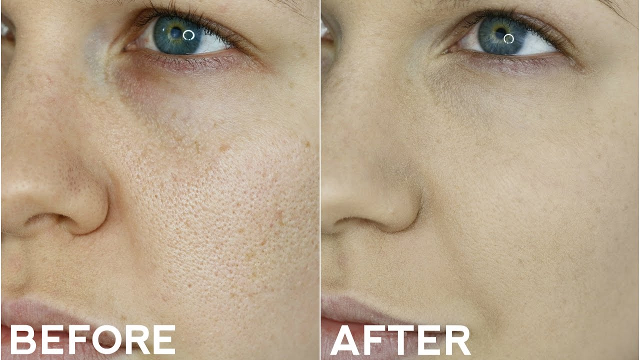 Permenantly Shrink Enlarged Pores Does Ultraformer Work