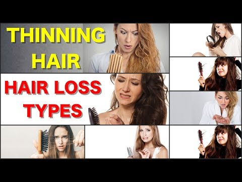 Thinning Hair in Women Hair Loss and Thinning Hair Types Hair Thinning Treatment Female Hair Loss