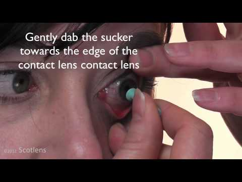 Large diameter RGP contact lens removal