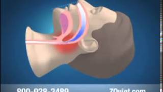 How To Stop Snoring | Help Me Stop Snoring | How Do You Stop Snoring | How Can You Stop Snoring