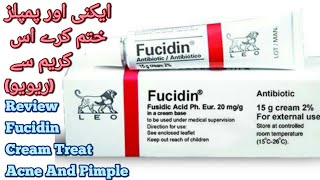 Fucidin Cream Review||Fucidin Cream For Acne Scars ||how to clear forehead small bumps in urdu/hindi