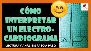 💓 CÓMO  NTERPRETAR UN ELECTROCARD OGRAMA 👉 Lectura Y Analisis Paso A Paso ☑️