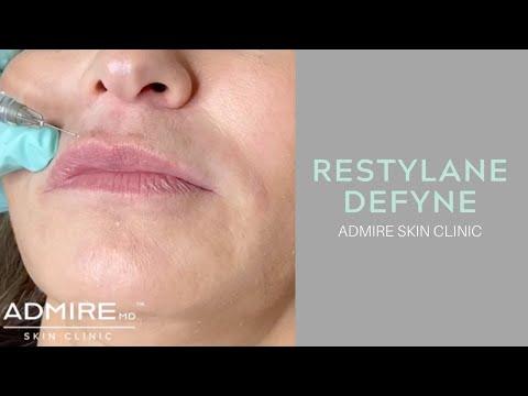 Admire Skin Clinic: Restylane Defyne