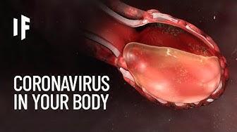 What Happens If You Caught The Coronavirus?