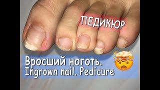 ► Pedicure step by step. INGROWN NAIL. How to cut toenails. Pedicure home