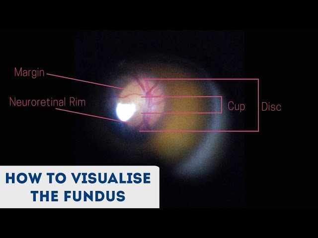 Fundoscopy | How to Visualise the Fundus | Direct Ophthalmoscopy | OSCE Guide