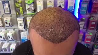 Saç Hakkında Her Şey