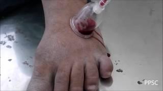 Quick Pain Relief in Gout by Rakta Mokshana (Ayurveda)..for more Visit: www.prashamanapainclinic.com