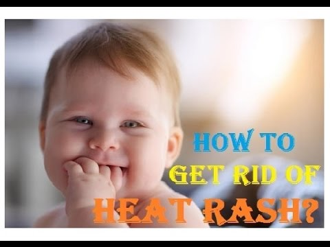 how to get rid of face rash on baby