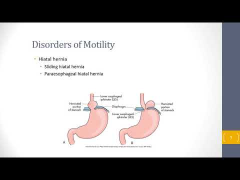 Gastrointestinal Disorders Lecture