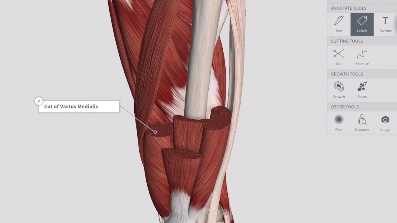 Lower Limb Dissection in 3D with Complete Anatomy - YouTube