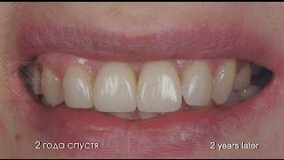 Комплексное протезирование передних зубов. Имплантация. Виниры. Лечение каналов.