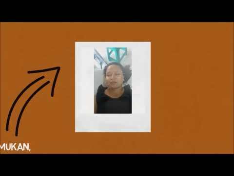 acupuncture batam | klinik kecantikan batam |  0812-9076-9789