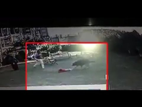 Brave Brother Fights Off Dog To Save Little Sister In Ahmedabad
