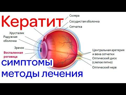Кератит симптомы и лечение, виды, причины, диагностика, фото, прогноз